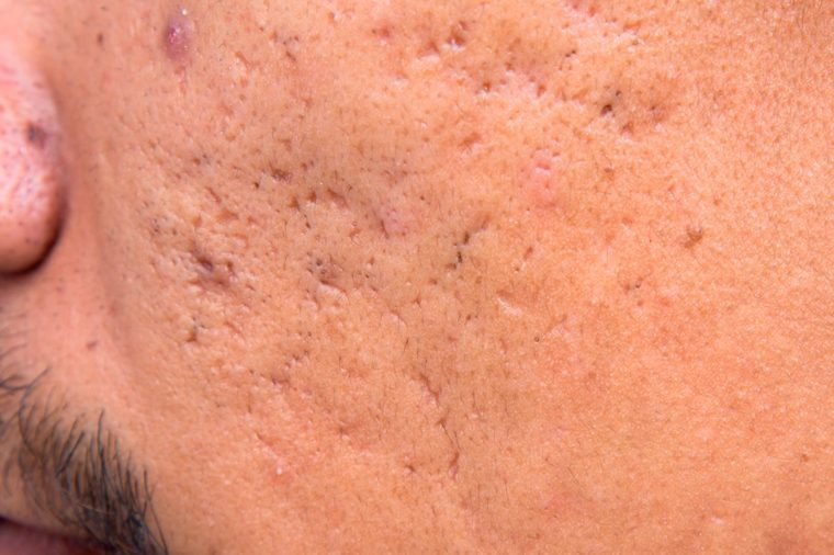 Icepick acne scars on a man's cheek.