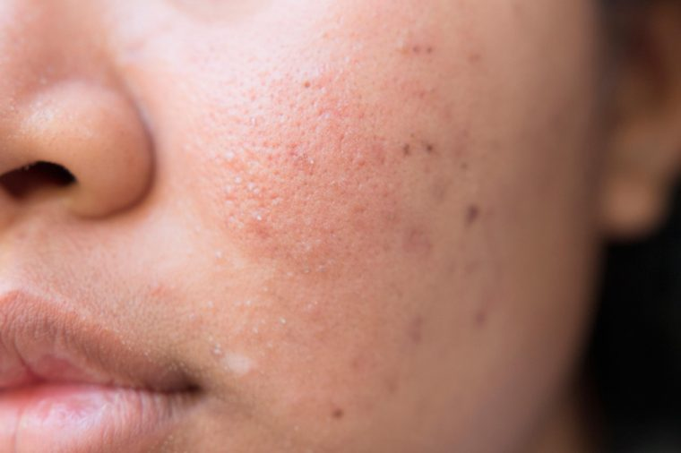 Hyperpigmentation acne scars on a woman's cheek.