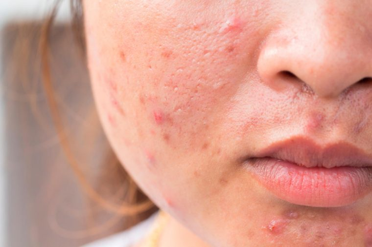 Common Acne Scars And How To Get Rid Of Them The Healthy
