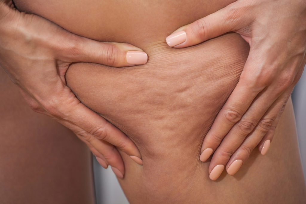 What Causes Cellulite And Why Is It Hard To Get Rid Of The Healthy