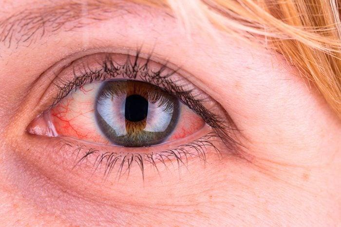 close up of yellowed eye