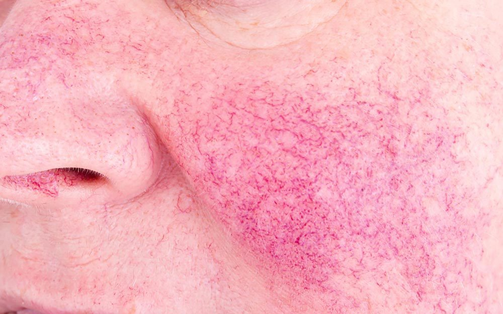 Got Rosacea? These Makeup Tricks Will Make It Disappear