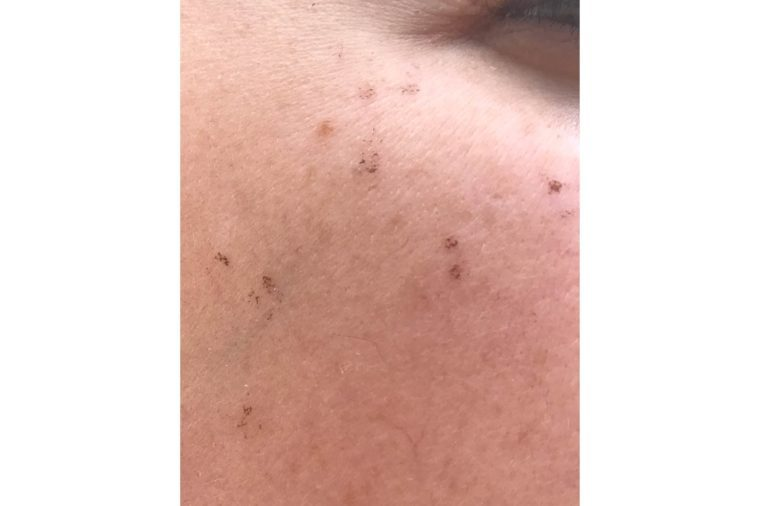 03-flaking-I-Tried-Lasers-for-Melasma—And-Here's-What-Happened