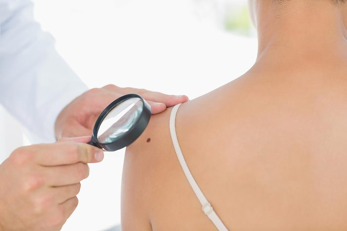 dermatologist looking at skin with magnifying glass
