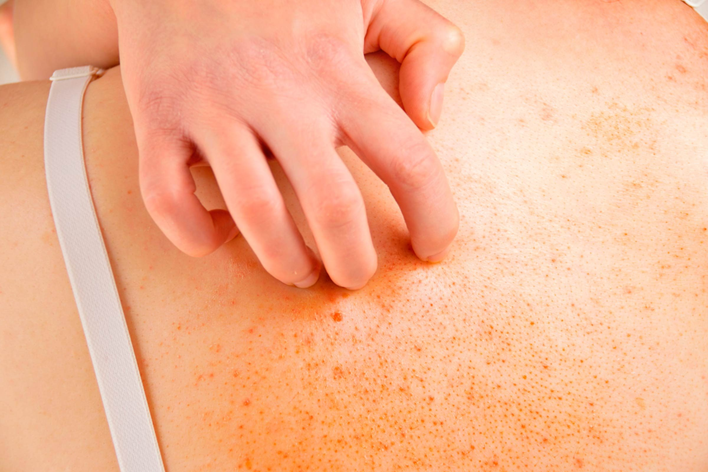hand scratching skin