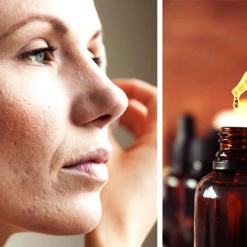Thinking About Using Essential Oils to Fight Acne? Read This First
