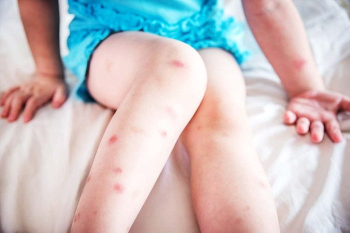 bed bug mosquito bites