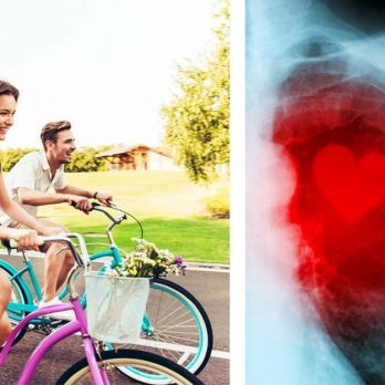 How to Prevent Heart Disease and Stroke: 30 Ways to Reduce Your Risk