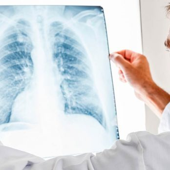 9 Ordinary Things in Your Home That Can Damage Your Lungs