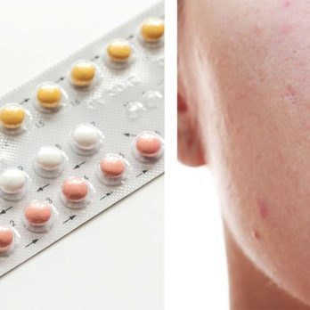 Does Birth Control Help or Hurt Acne? A Dermatologist Sets the Record Straight