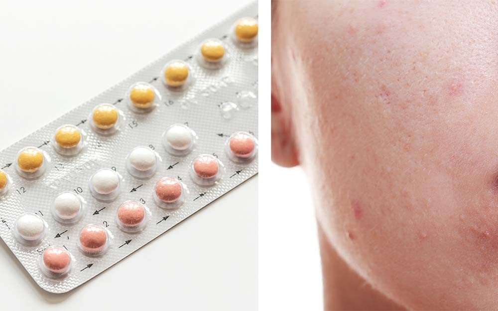 Does Birth Control Help Or Hurt Acne A Dermatologist Explains The Healthy