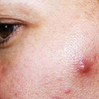 How To Get Rid of Cystic Acne, Sometimes Overnight (Really!)