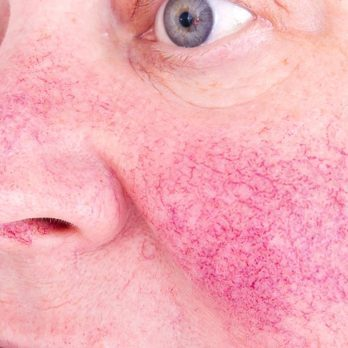 Yes, Windy Weather Can Trigger Rosacea—and So Can These 6 Other Things