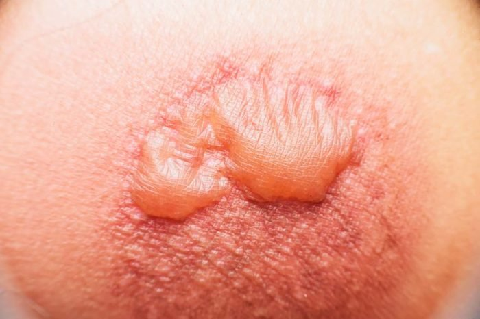 A large skin blister.