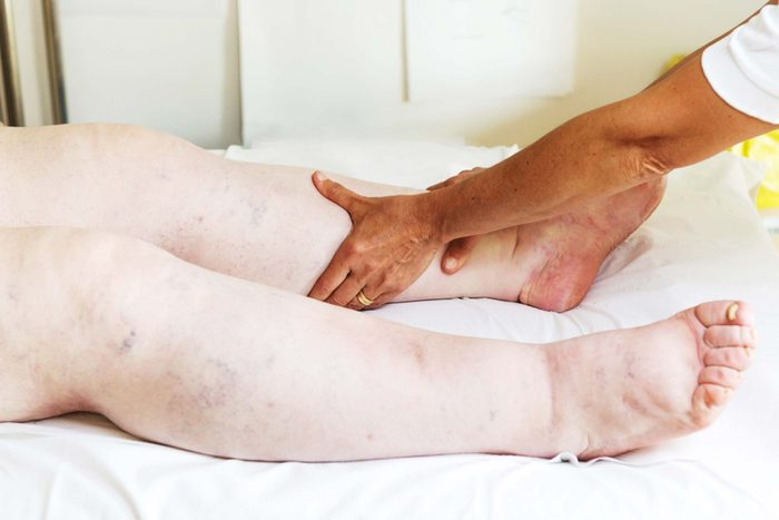 Person with extremely swollen legs