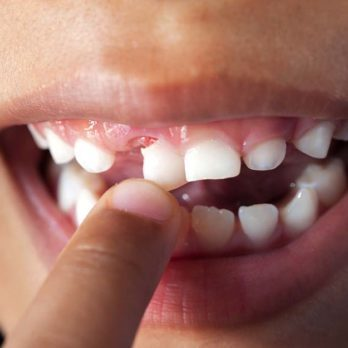 Researchers Think Baby Teeth Could Offer a Clue Into What Causes Autism