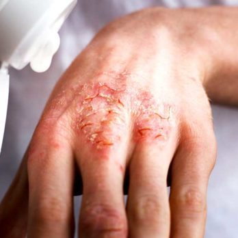 Yes, There's a Miracle Trick to Relieve Eczema—and It's Unbelievably Simple