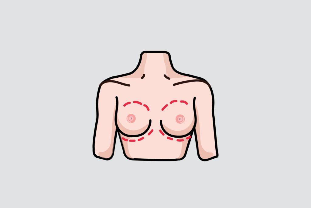 illustration of breasts