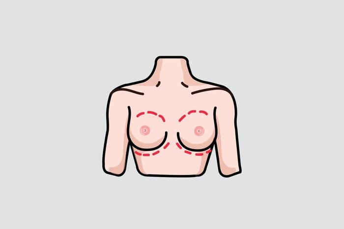 illustration of breasts