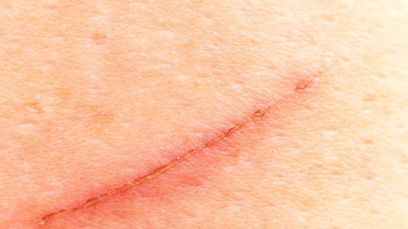 The-One-Ingredient-You-Need-to-Prevent-Scars-Hint-It's-Not-Neosporin