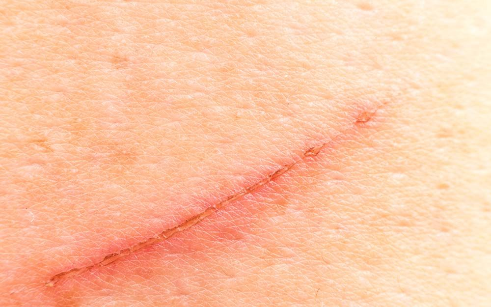 The Secret Ingredient To Prevent Scars The Healthy
