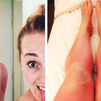 These Hilarious Sunburns Will Make You Laugh and Cringe at the Same Time