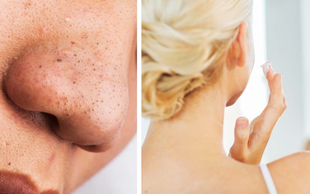 Dr  Pimple Popper's Advice on Getting Rid of Blackheads