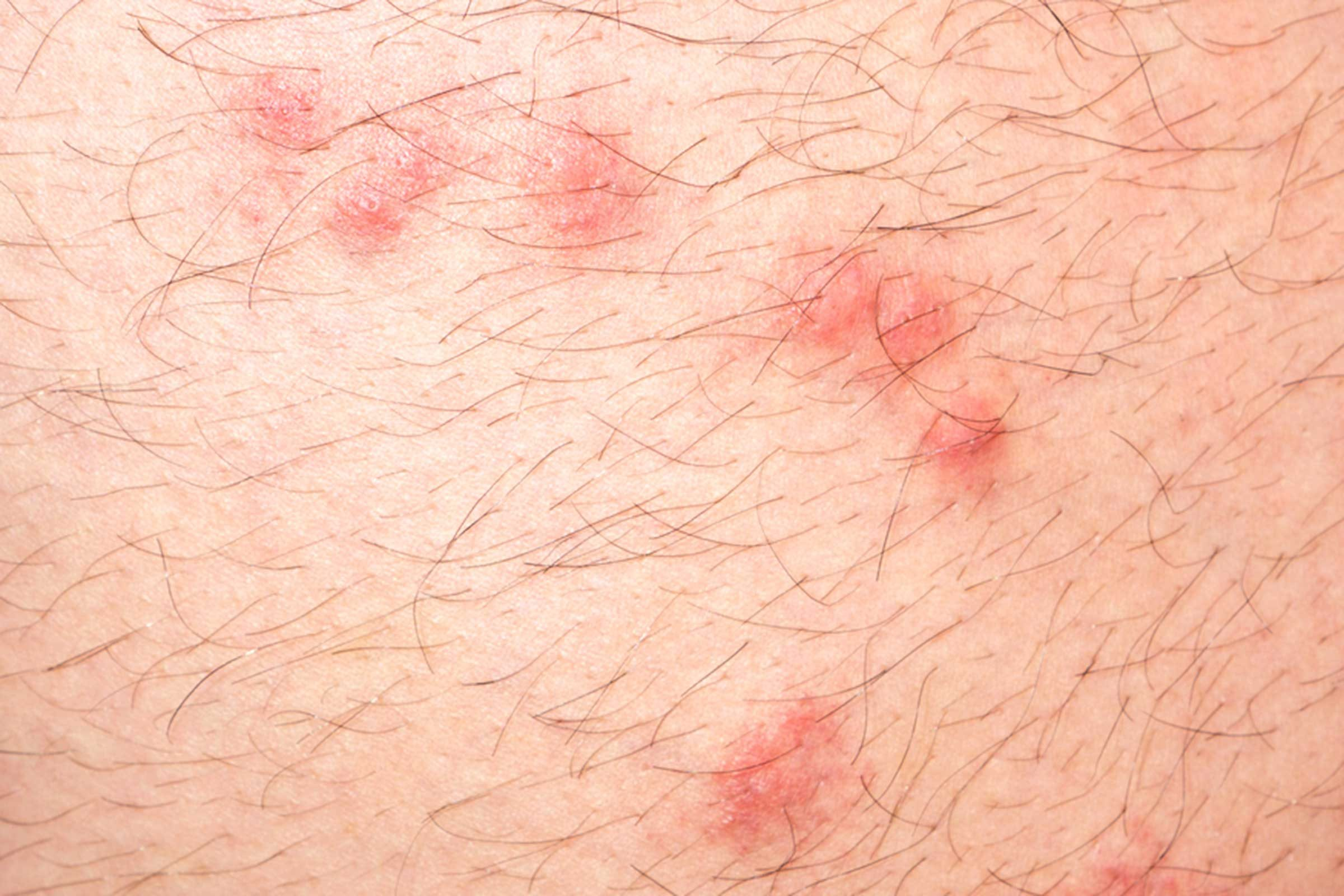 close up of flea bites on human skin