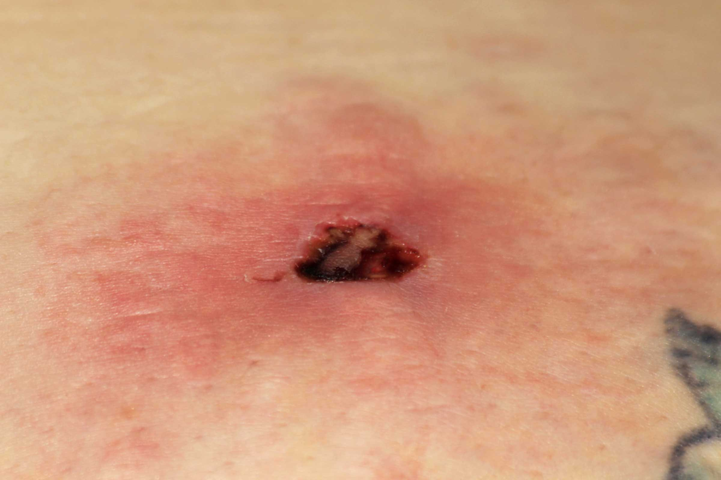 brown recluse spider bite on human skin