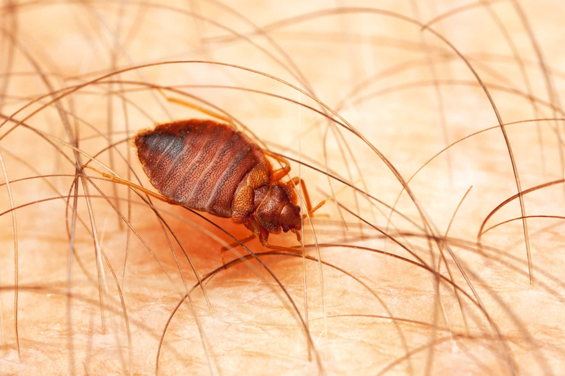 magnification of a bed bug on human skin