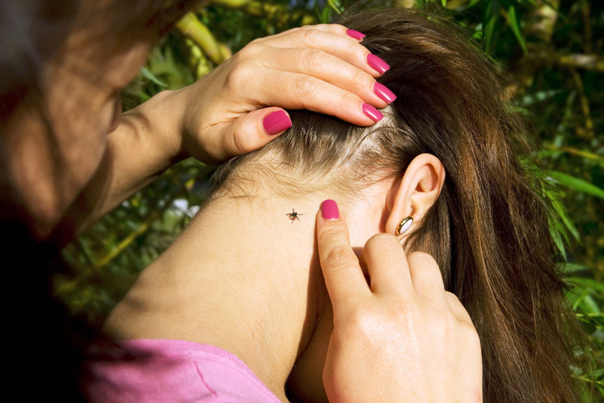 Woman with a tick on her neck