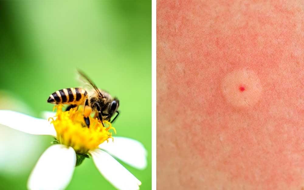 Strange Identifying Bug Bites Heres What Bit You The Healthy Uwap Interior Chair Design Uwaporg