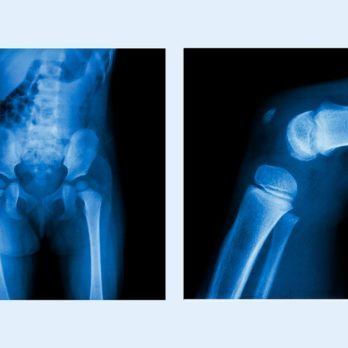 "Forget Being ""Big Boned""—Are Your Bones Fat?"