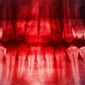 Yes, Stress Can Make Teeth Fall Out—and It Can Happen to Anyone