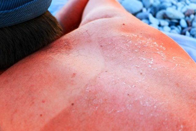 01-sunburn-How-to-Treat-Sunburn-With-Essential-Oils_441609742-Liubov-Silanteva