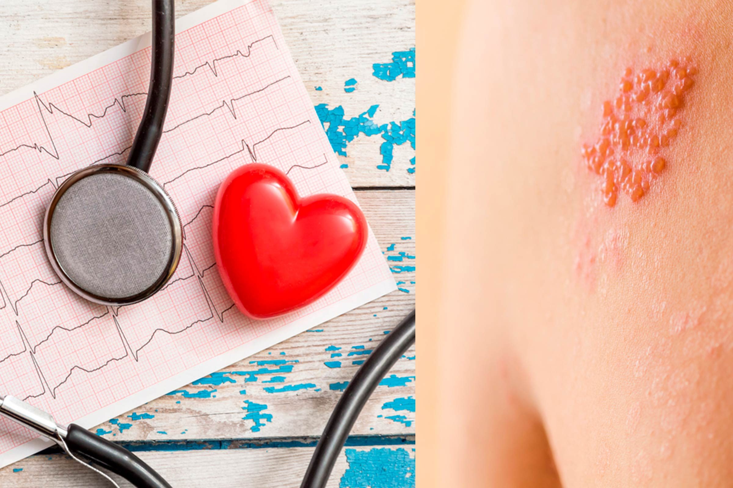 shingles rash, stethoscope and heart ekg