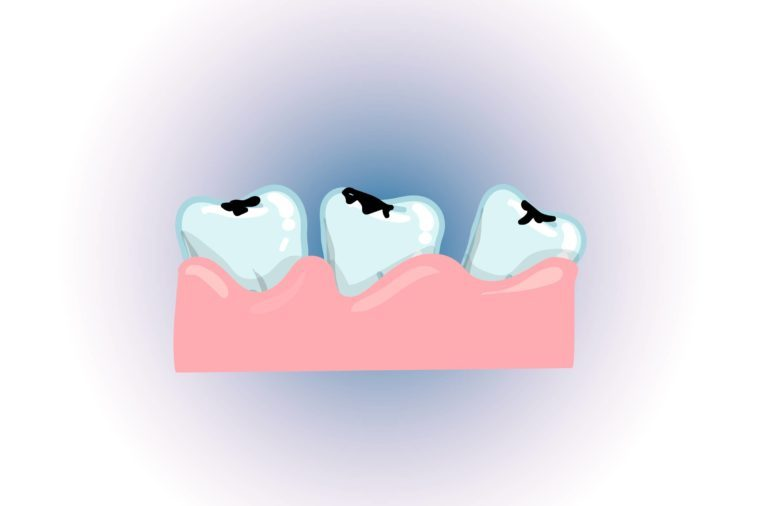 Illustration of three loose teeth in the gum.