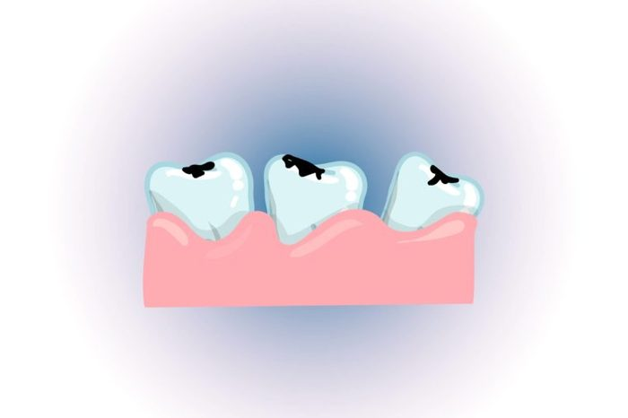 Illustration of three loose teeth in the gum.