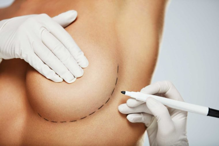 Clinician marking a breast for incision.