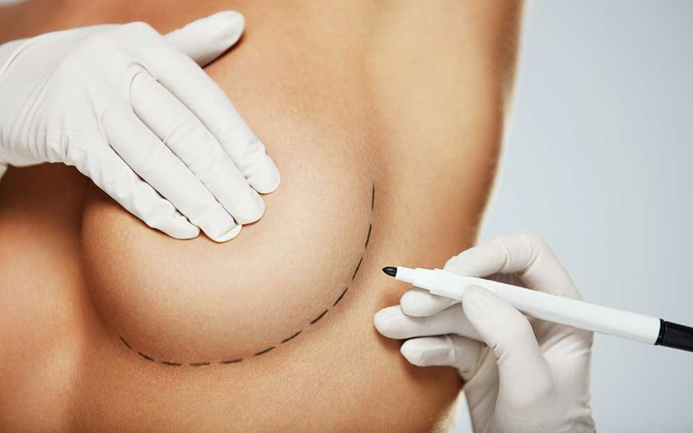 Things I Wish I D Known Before Getting Breast Reduction Surgery