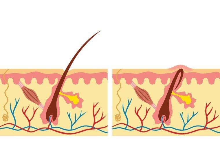 Illustration of an ingrown hair and a regular hair.