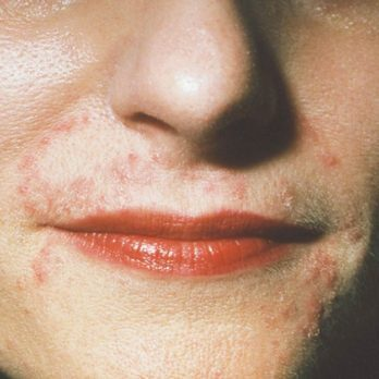 7 Skin Conditions That Look Like Acne But Aren't