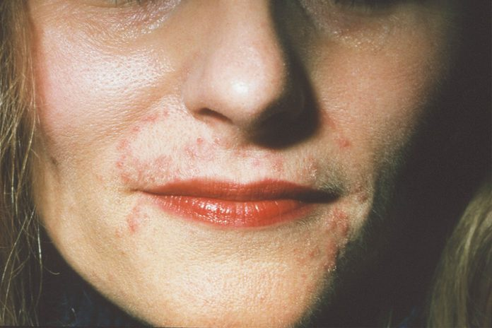 woman with rash around her mouth (perioral dermatitis)