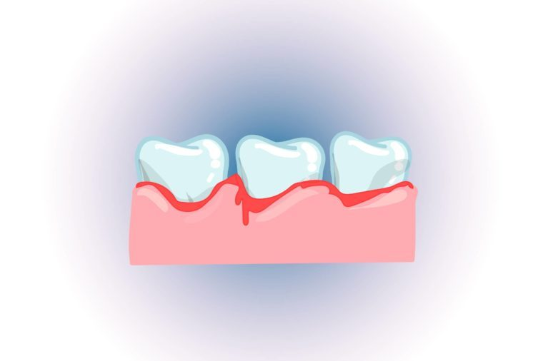 Illustration of three teeth bleeding in the gums, or an infection.