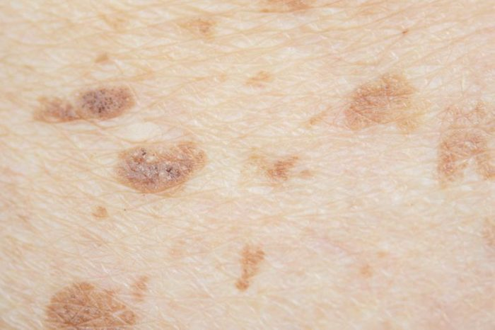 closeup of moles and freckles on skin