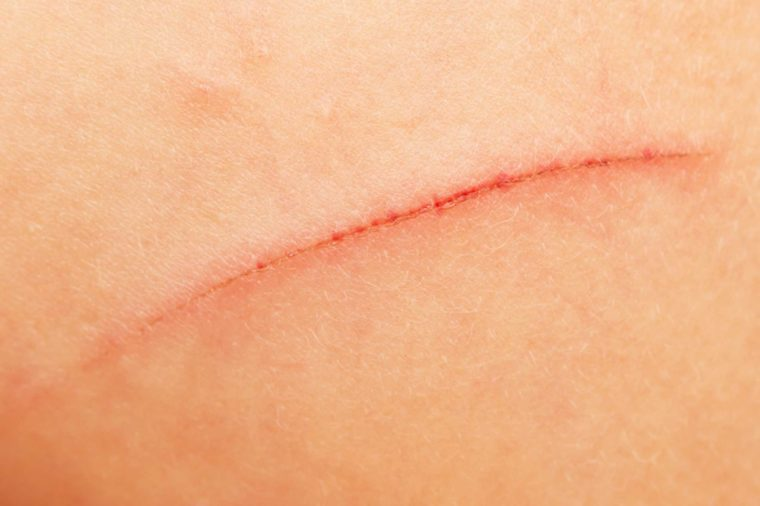 close up of a scar on skin