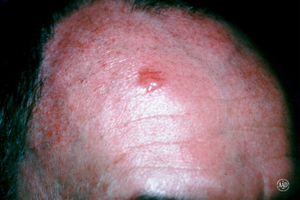 basal cell carcinoma on forehead