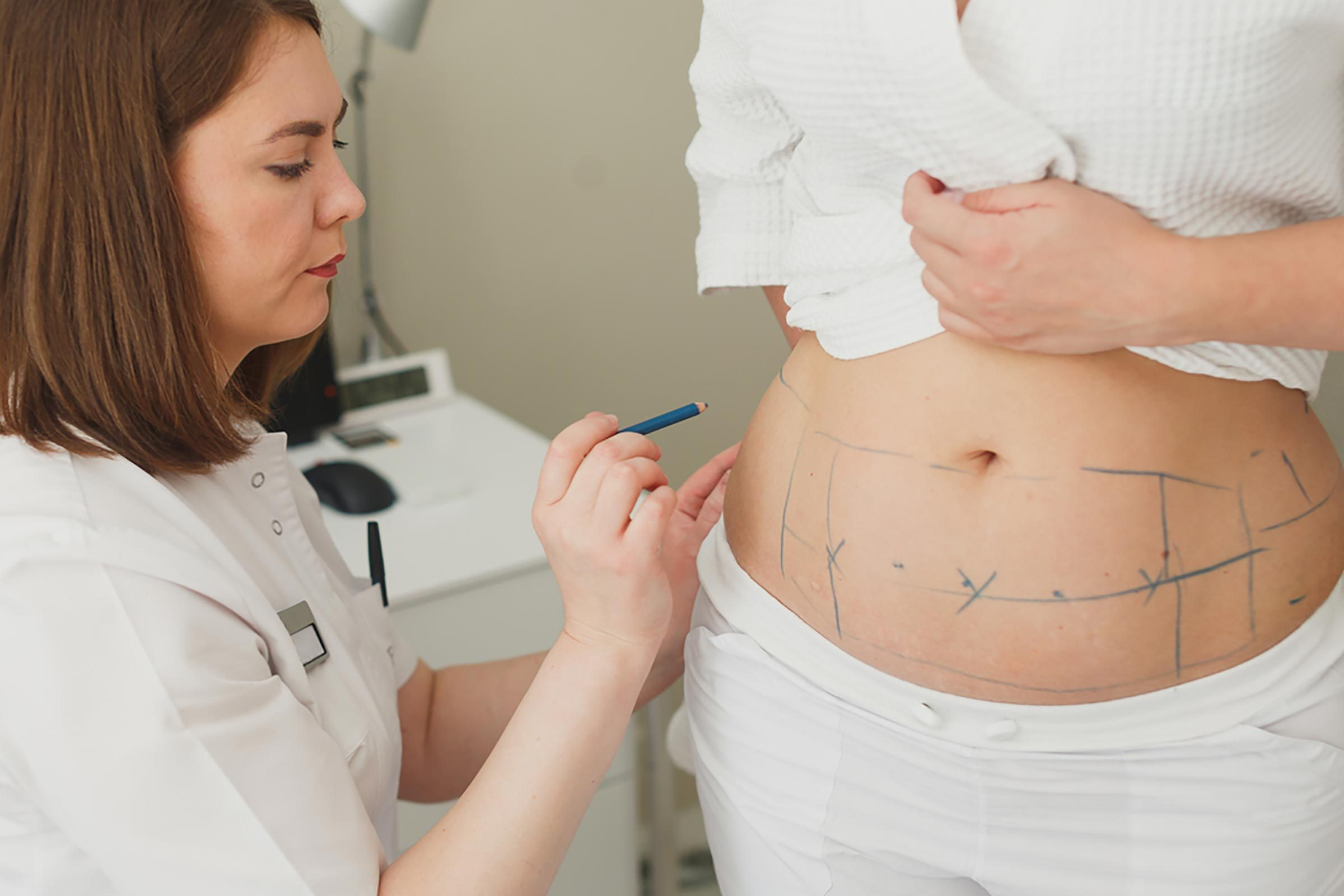 woman marking patient's abdomen for surgery