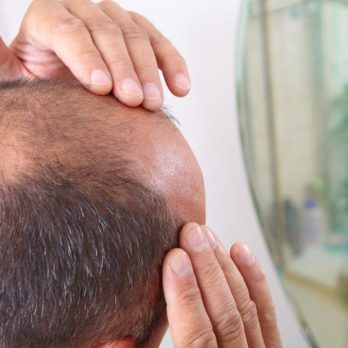 This New, Cutting-Edge Treatment Could Be the End of Baldness