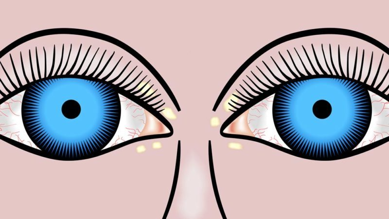 Xanthelasma Removal: Get Rid of Cholesterol Deposits | The